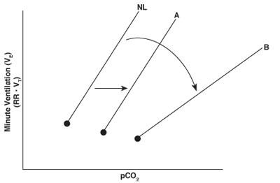 Minute Ventilation graph