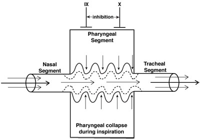 Pharyngeal Collapse diagram