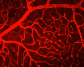 Collagen IV staining to visualize the mouse retinal vasculature.