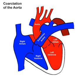 Coarctation of the Aorta (CoA)