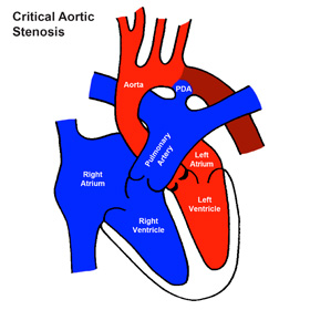 Critical Aortic Stenosis (Critical AS)