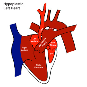 Hypoplastic Heart Syndrome (HLHS)