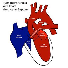 Pulmonary Atresia with Intact Ventricular Septum (PA/IVS)