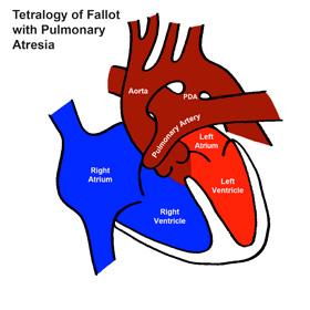 Tetralogy of Fallot with Pulmonary Atresia(ToF/PA)