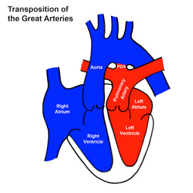 Transposition of the Great Arteries (TGA)