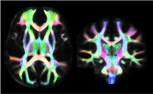 We use various quantitative MRI techniques to study the brain, including diffusion tractography (as seen here).