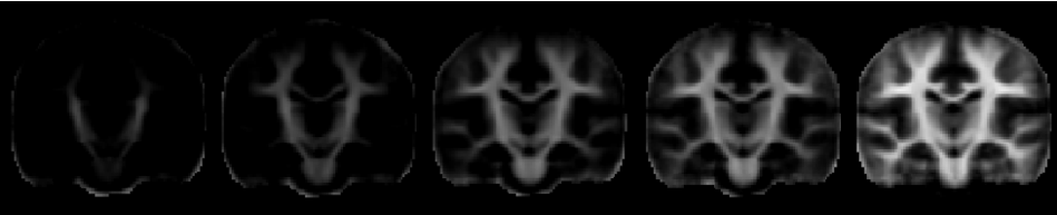 White matter development from 3 to 12 months of age