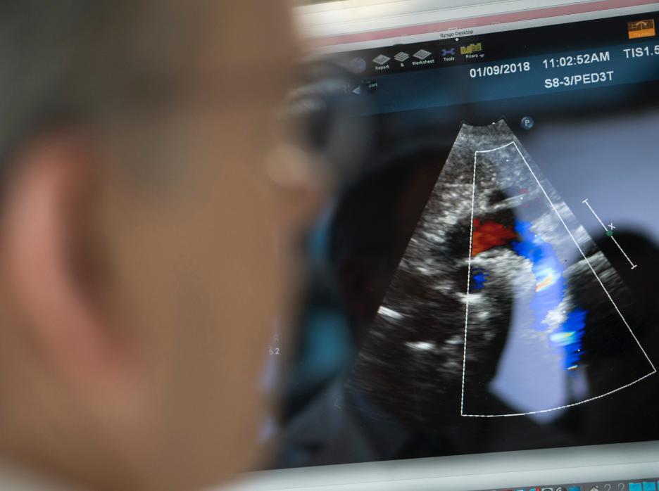 echocardiogram on monitor